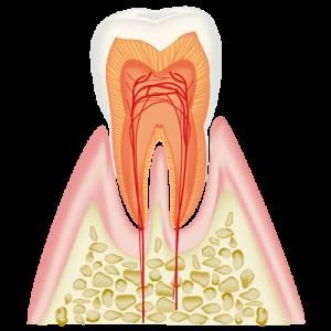 CO エナメル質内のむし歯