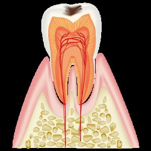 間食の時間を決める、フッ化物(フッ素)を使用するなどの方法で再石灰化を促し、経過観察します。 C1 エナメル質内のむし歯