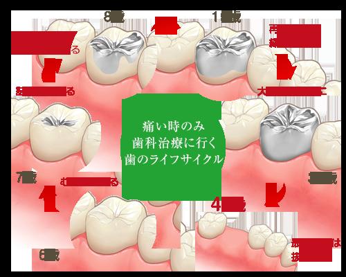 痛い時のみ 歯科治療に行く 歯のライフサイクル